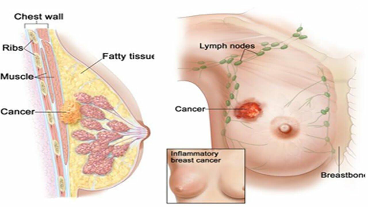 buah merah mengobati kanker payudara